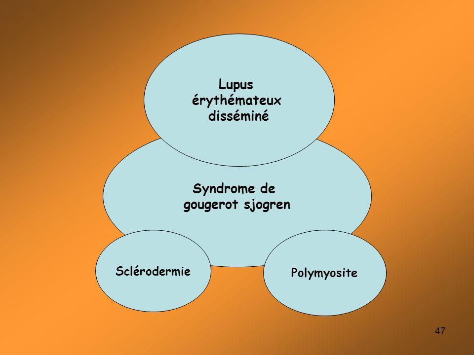 47 Syndrome de gougerot sjogren Lupus érythémateux disséminé Polymyosite Sclérodermie