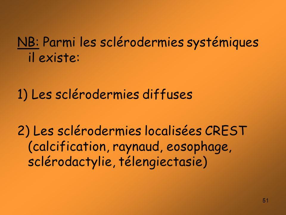 51 NB: Parmi les sclérodermies systémiques il existe: 1) Les sclérodermies diffuses 2) Les sclérodermies localisées CREST (calcification, raynaud, eos