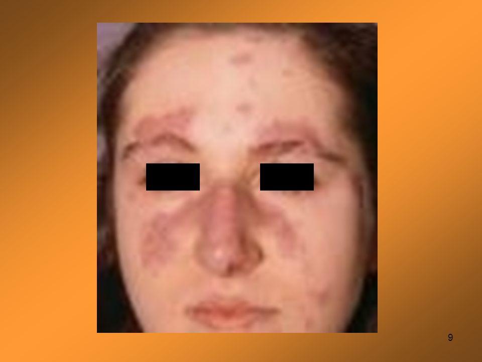 20 Le diagnostic repose sur un faisceau darguments +++ Eruption malaire en aile de papillon ; lupusdiscoïde ; Photosensibilité ; Ulcération muqueuse Polyarthrite non érosive Pleurésie ou péricardite Atteinte rénale: Proteinurie> 0.5g/j Atteinte neurologique: convulsion, psychose Atteinte hématologique Désordre immunologique: Présence danti SM, antiDNA natif ou anti phospho-lipide Présence danticorps antinucléaire à un taux anormal Diagnostic si > 4 critères