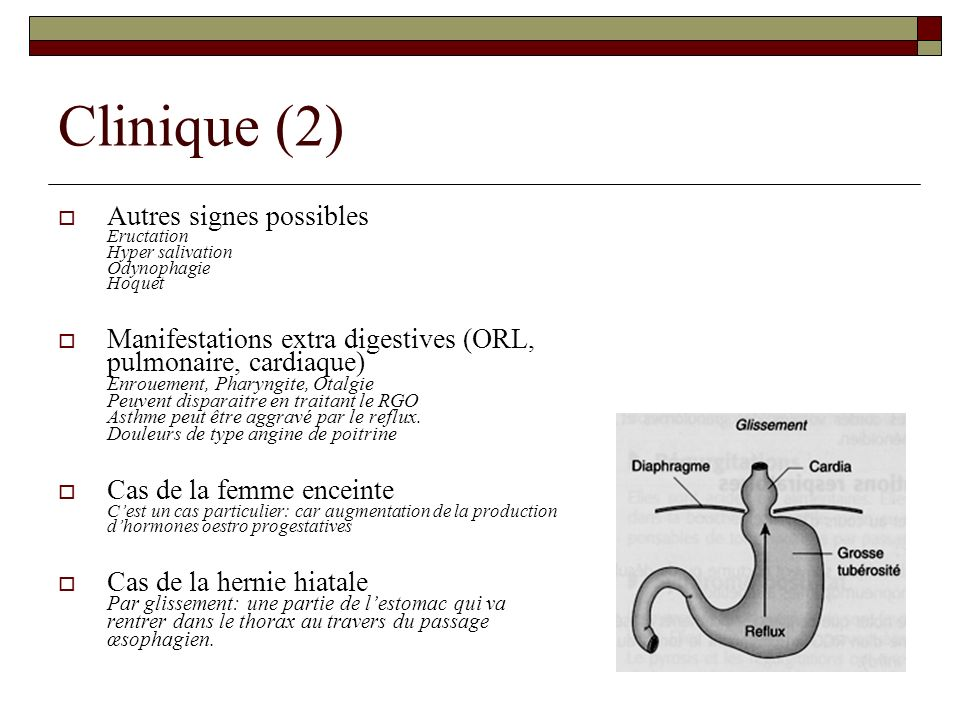 Clinique (2) Autres signes possibles Eructation Hyper salivation Odynophagie Hoquet Manifestations extra digestives (ORL, pulmonaire, cardiaque) Enrou