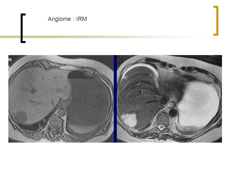 Angiome : IRM