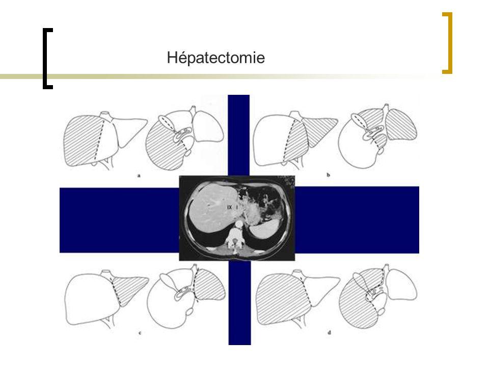 Hépatectomie