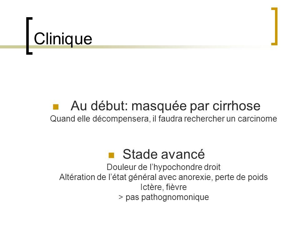 Clinique Au début: masquée par cirrhose Quand elle décompensera, il faudra rechercher un carcinome Stade avancé Douleur de lhypochondre droit Altération de létat général avec anorexie, perte de poids Ictère, fièvre > pas pathognomonique