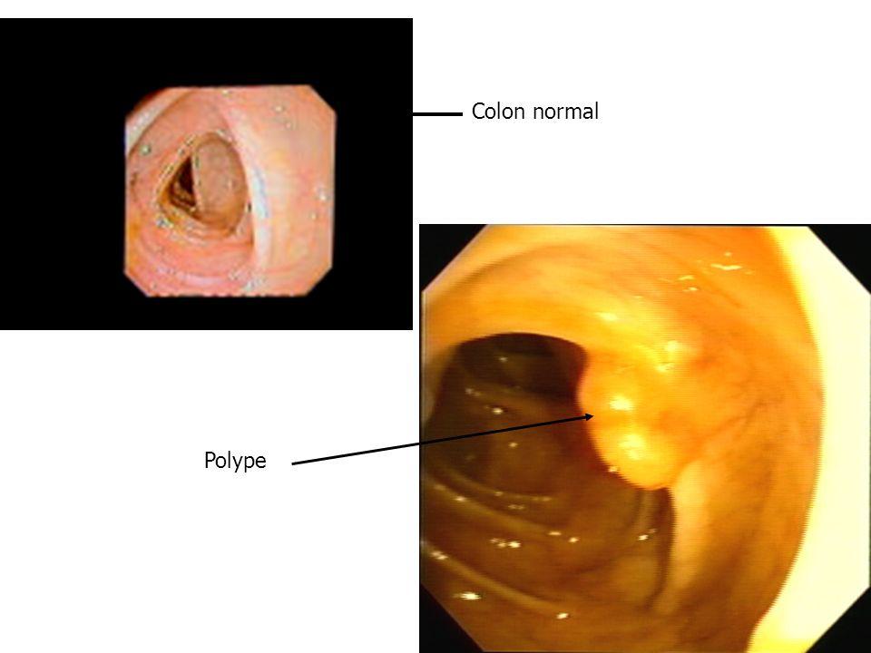 Colon normal Polype