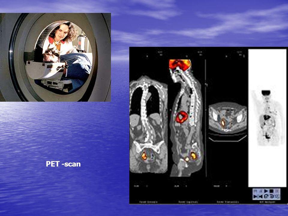 PET -scan