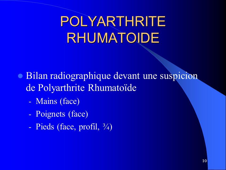 10 POLYARTHRITE RHUMATOIDE Bilan radiographique devant une suspicion de Polyarthrite Rhumatoïde - Mains (face) - Poignets (face) - Pieds (face, profil
