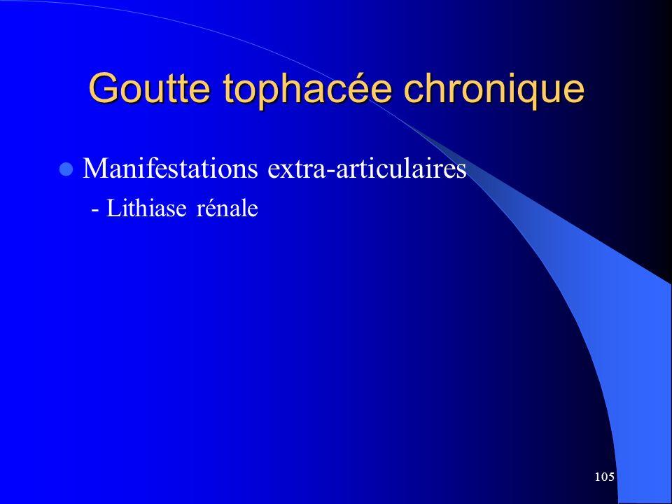 105 Goutte tophacée chronique Manifestations extra-articulaires - Lithiase rénale