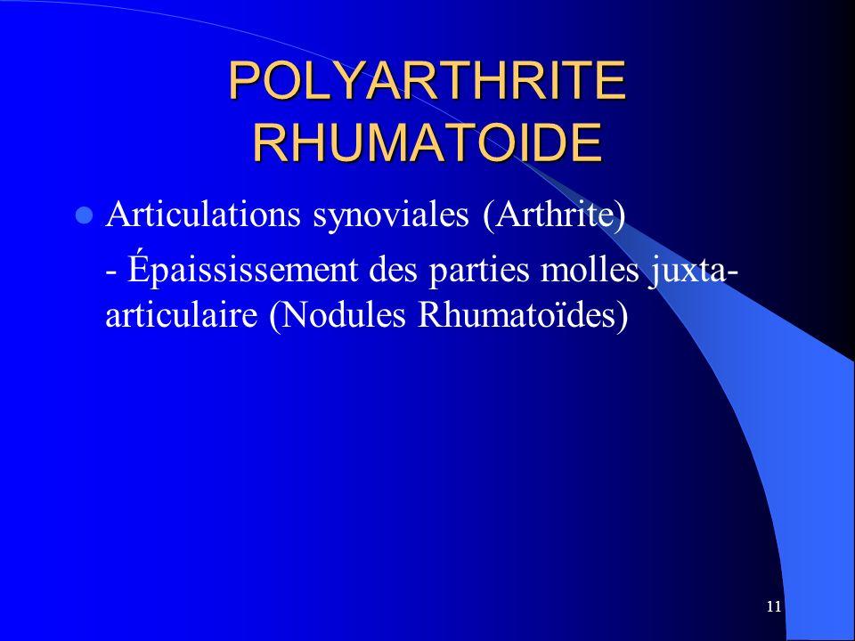 11 POLYARTHRITE RHUMATOIDE Articulations synoviales (Arthrite) - Épaississement des parties molles juxta- articulaire (Nodules Rhumatoïdes)