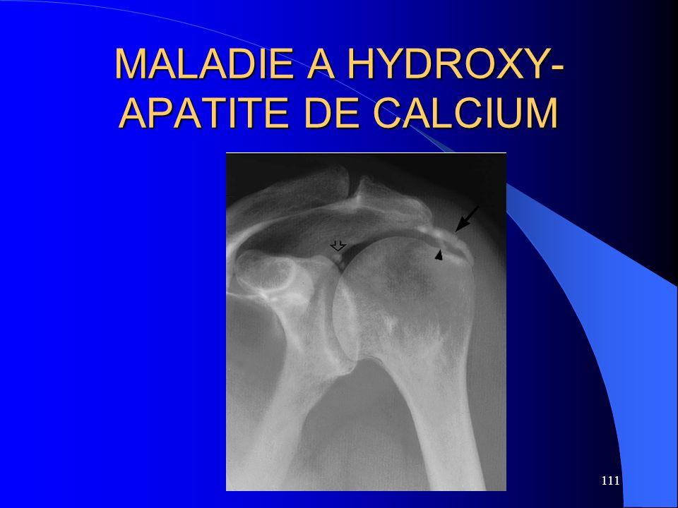 111 MALADIE A HYDROXY- APATITE DE CALCIUM