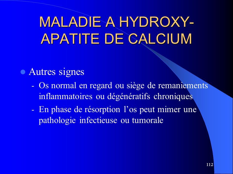 112 MALADIE A HYDROXY- APATITE DE CALCIUM Autres signes - Os normal en regard ou siège de remaniements inflammatoires ou dégénératifs chroniques - En
