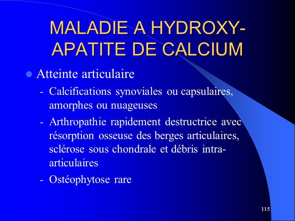 115 MALADIE A HYDROXY- APATITE DE CALCIUM Atteinte articulaire - Calcifications synoviales ou capsulaires, amorphes ou nuageuses - Arthropathie rapide