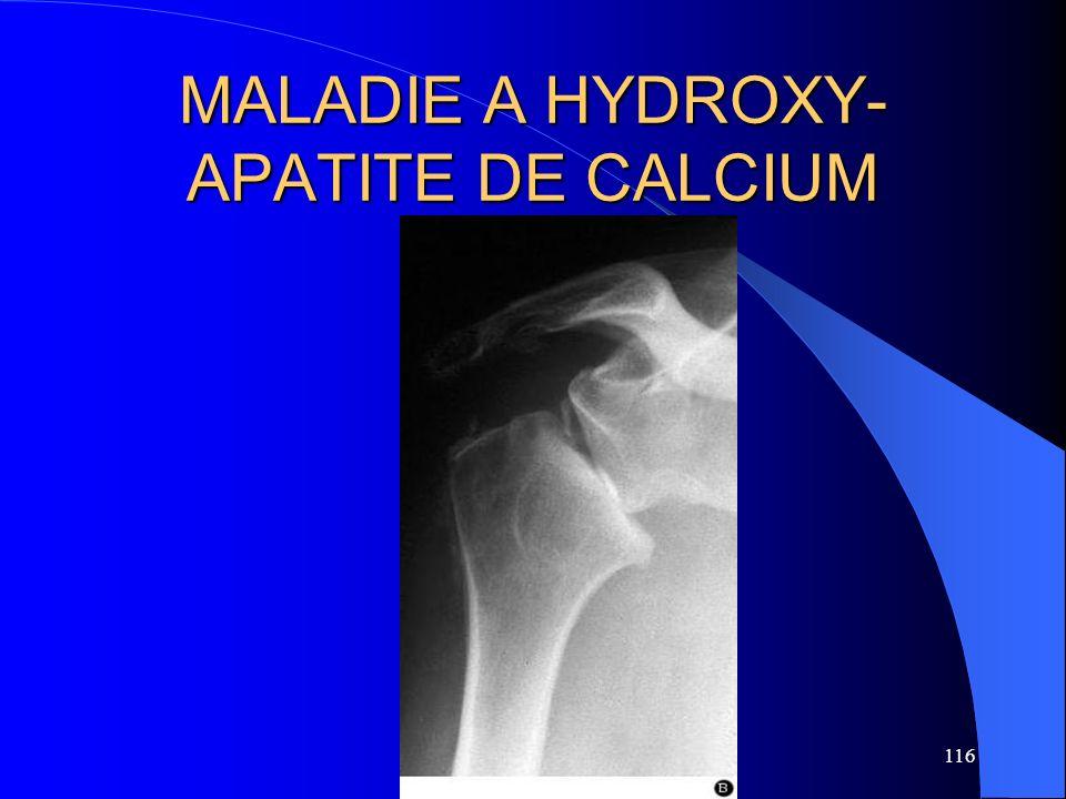 116 MALADIE A HYDROXY- APATITE DE CALCIUM