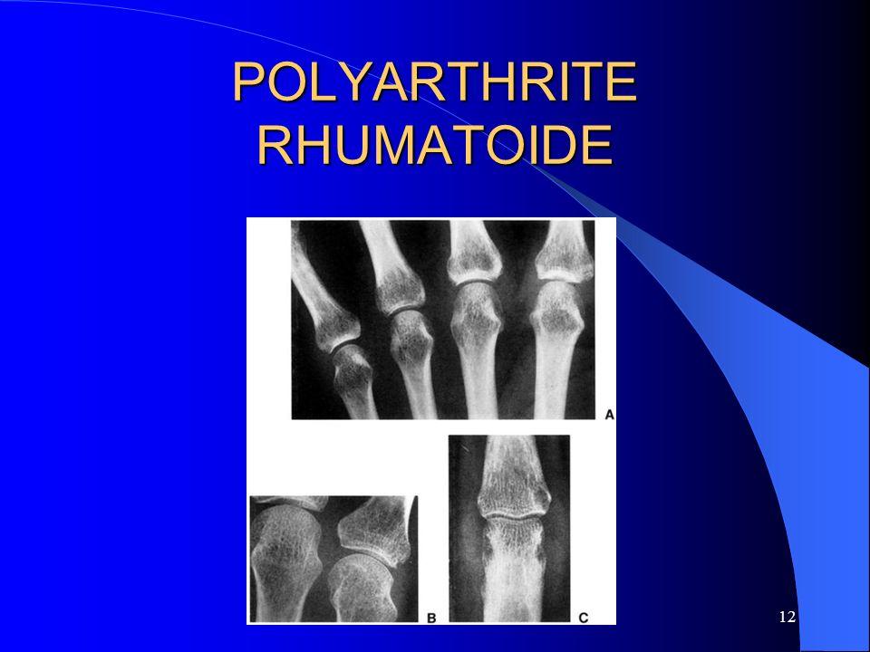 12 POLYARTHRITE RHUMATOIDE