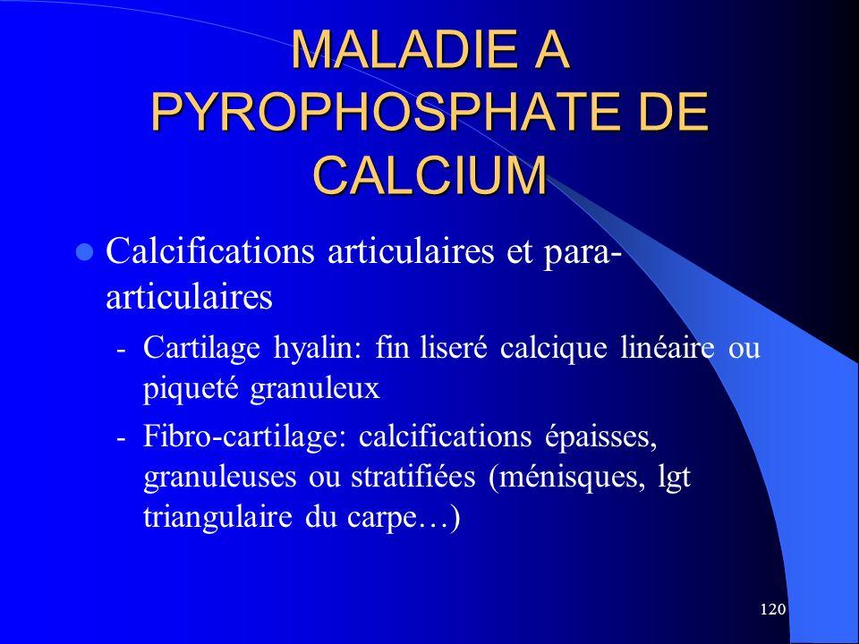 120 MALADIE A PYROPHOSPHATE DE CALCIUM Calcifications articulaires et para- articulaires - Cartilage hyalin: fin liseré calcique linéaire ou piqueté g