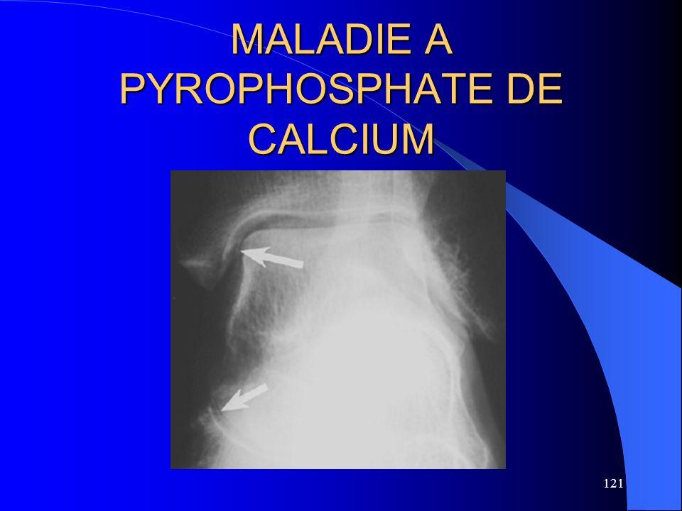 121 MALADIE A PYROPHOSPHATE DE CALCIUM