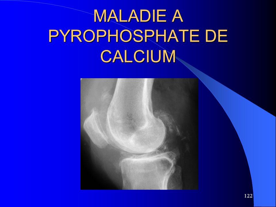 122 MALADIE A PYROPHOSPHATE DE CALCIUM