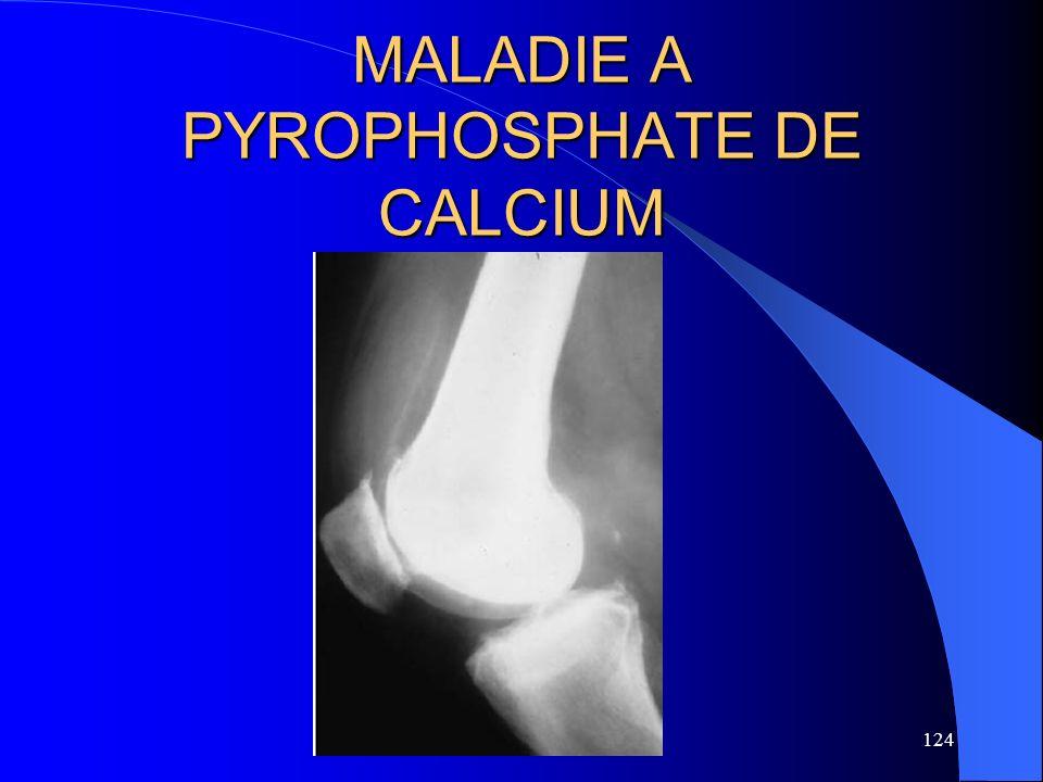 124 MALADIE A PYROPHOSPHATE DE CALCIUM