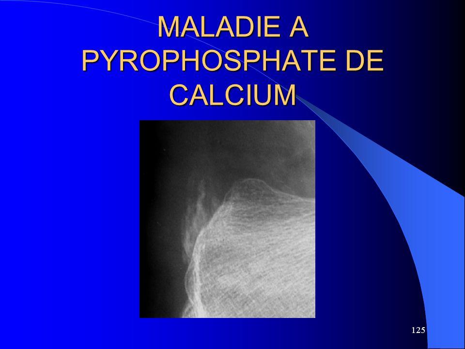 125 MALADIE A PYROPHOSPHATE DE CALCIUM