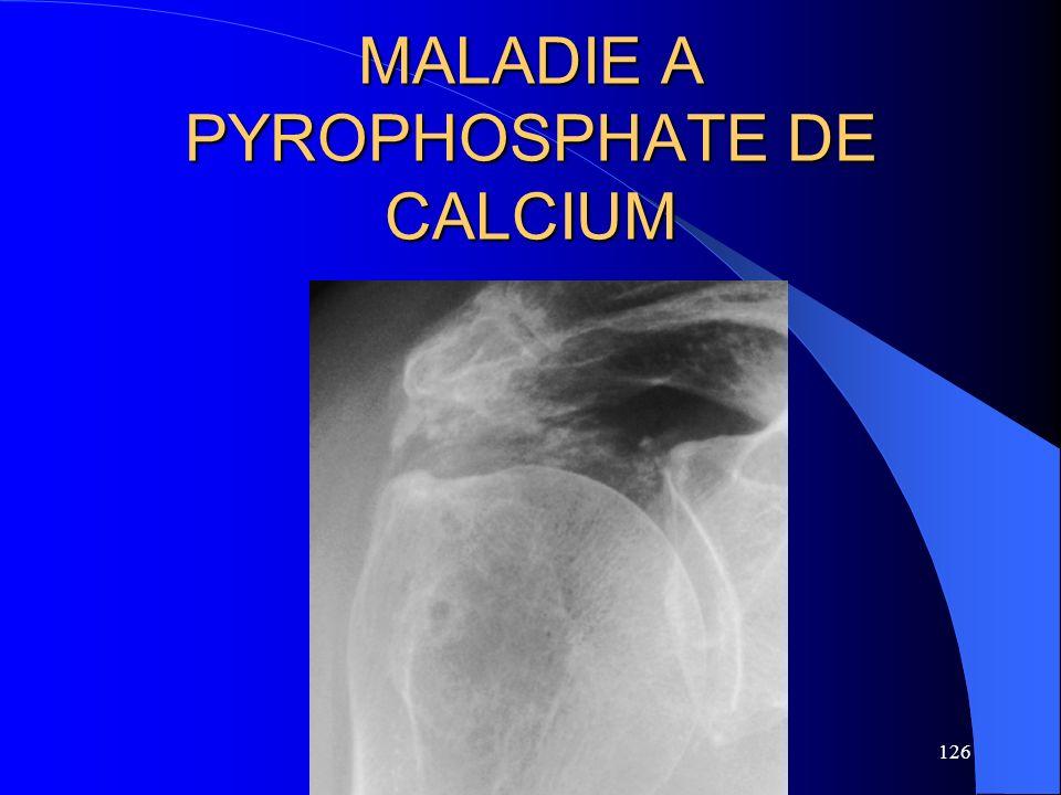 126 MALADIE A PYROPHOSPHATE DE CALCIUM