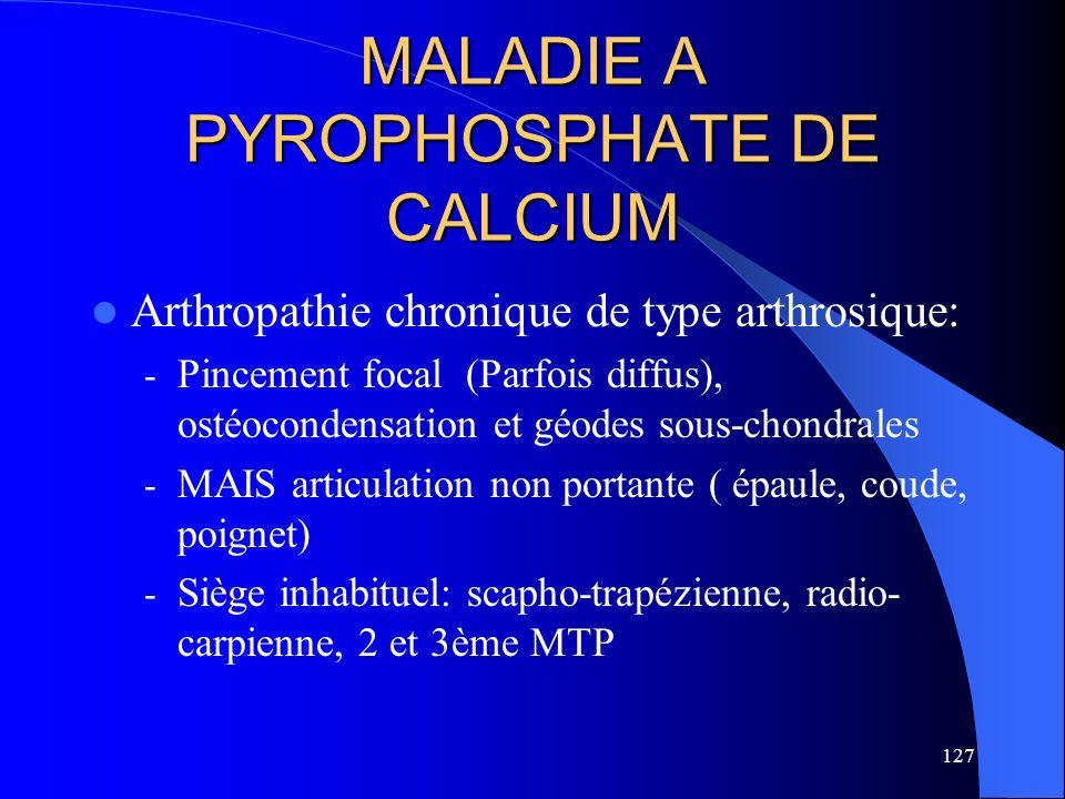 127 MALADIE A PYROPHOSPHATE DE CALCIUM Arthropathie chronique de type arthrosique: - Pincement focal (Parfois diffus), ostéocondensation et géodes sou