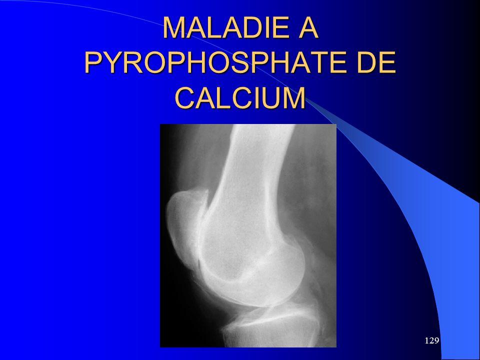 129 MALADIE A PYROPHOSPHATE DE CALCIUM