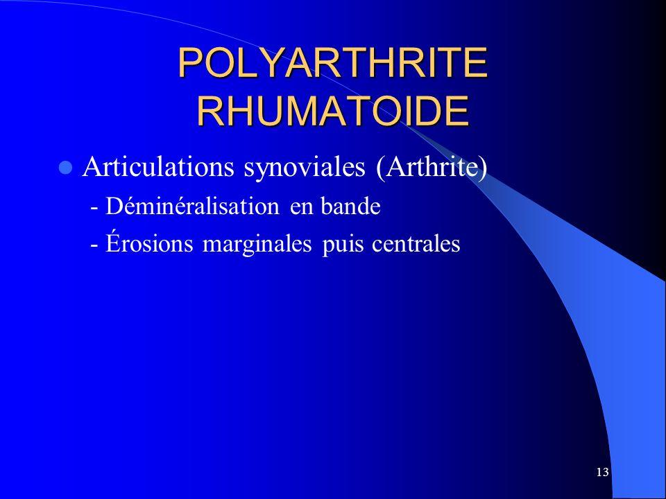 13 POLYARTHRITE RHUMATOIDE Articulations synoviales (Arthrite) - Déminéralisation en bande - Érosions marginales puis centrales
