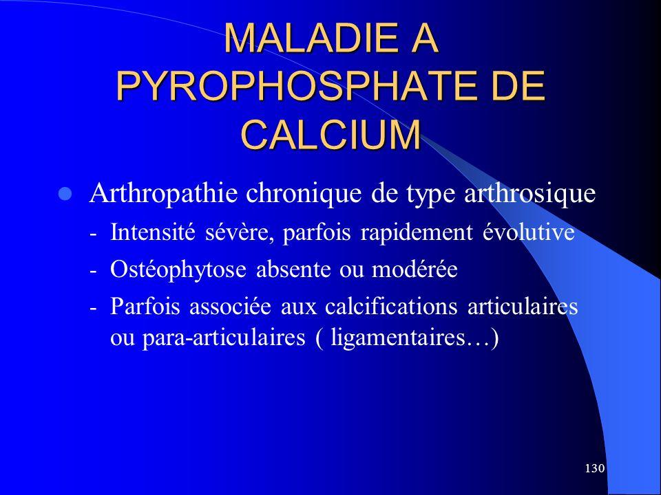 130 MALADIE A PYROPHOSPHATE DE CALCIUM Arthropathie chronique de type arthrosique - Intensité sévère, parfois rapidement évolutive - Ostéophytose abse