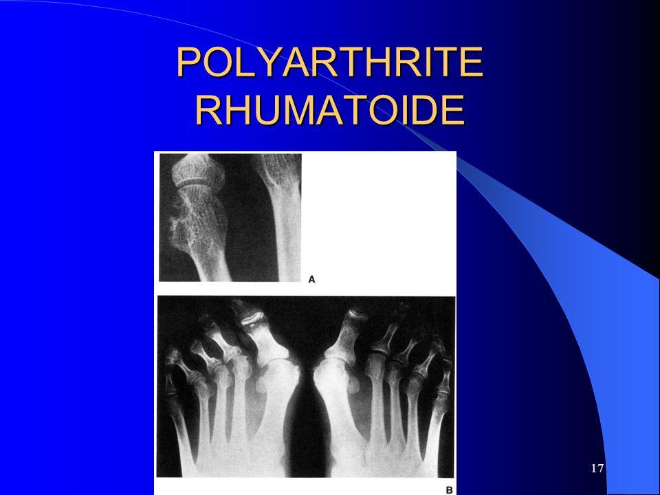 17 POLYARTHRITE RHUMATOIDE