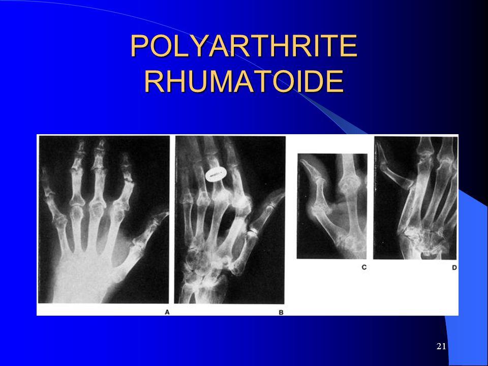 21 POLYARTHRITE RHUMATOIDE