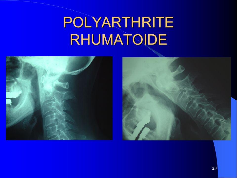 23 POLYARTHRITE RHUMATOIDE