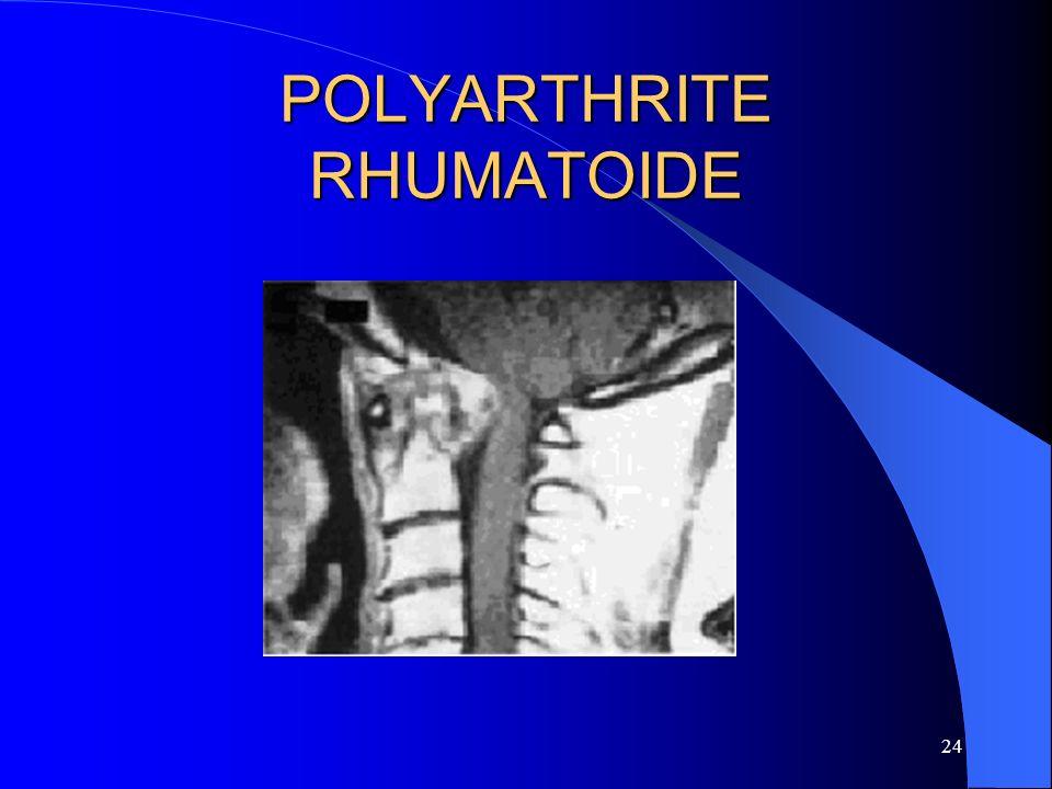 24 POLYARTHRITE RHUMATOIDE