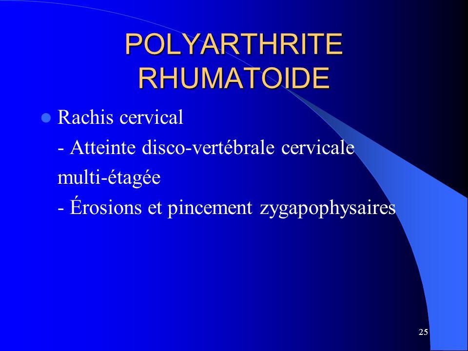25 POLYARTHRITE RHUMATOIDE Rachis cervical - Atteinte disco-vertébrale cervicale multi-étagée - Érosions et pincement zygapophysaires