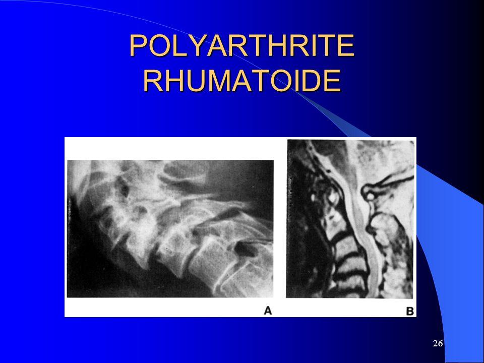 26 POLYARTHRITE RHUMATOIDE