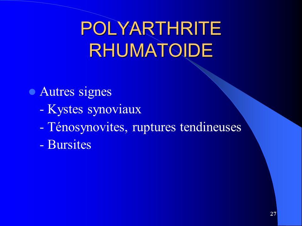 27 POLYARTHRITE RHUMATOIDE Autres signes - Kystes synoviaux - Ténosynovites, ruptures tendineuses - Bursites