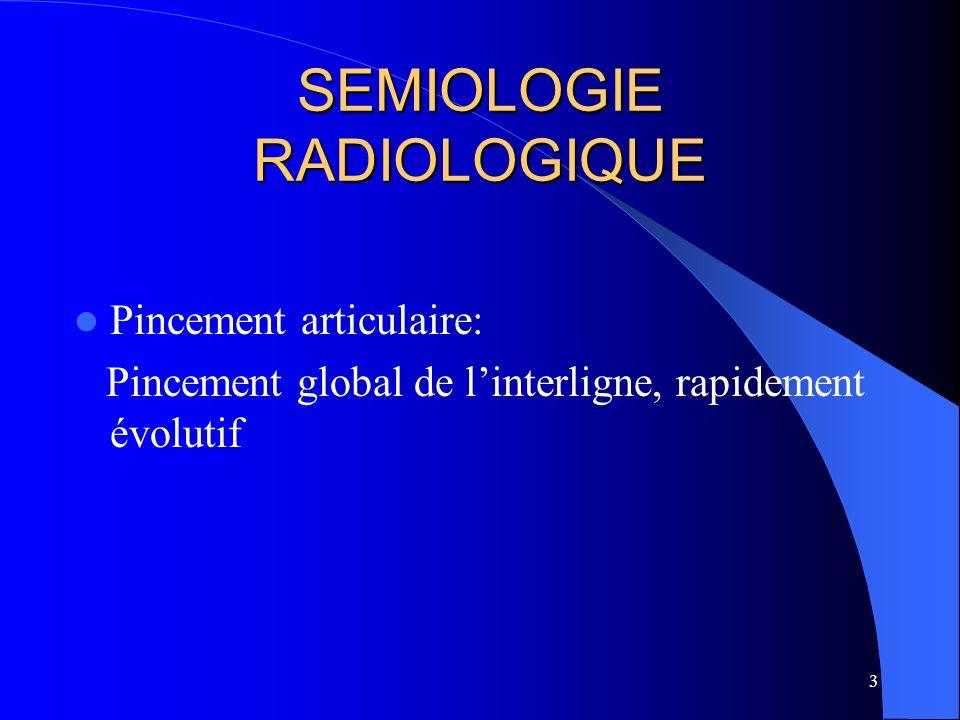 84 SAPHO Apport de limagerie complémentaire - TDM: précise latteinte thoracique antérieure sacro-iliaque - IRM: élimine une spondylodiscite infectieuse