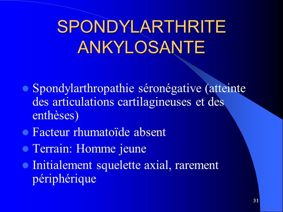 31 SPONDYLARTHRITE ANKYLOSANTE Spondylarthropathie séronégative (atteinte des articulations cartilagineuses et des enthèses) Facteur rhumatoïde absent