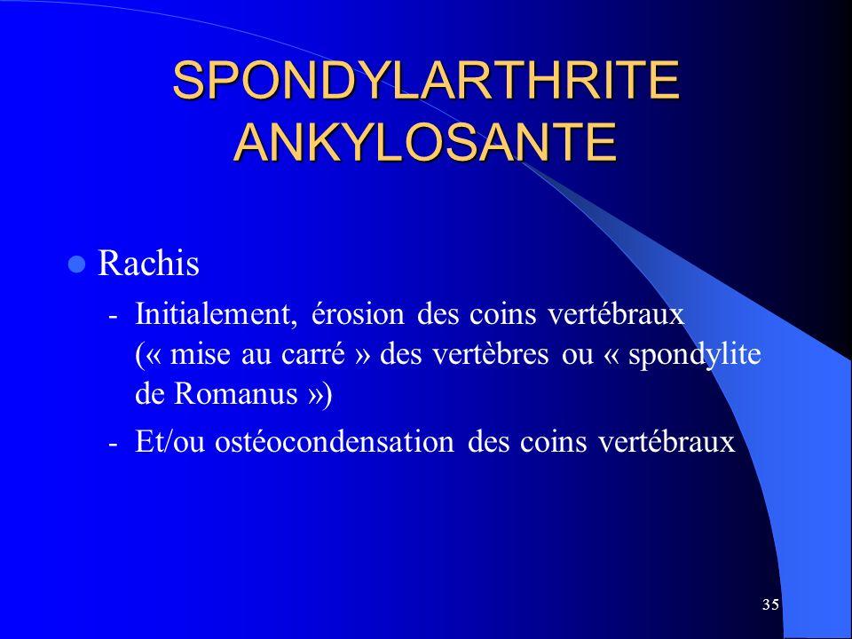 35 SPONDYLARTHRITE ANKYLOSANTE Rachis - Initialement, érosion des coins vertébraux (« mise au carré » des vertèbres ou « spondylite de Romanus ») - Et