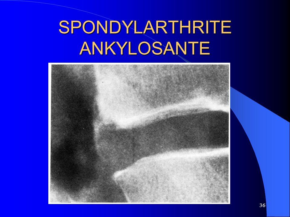 36 SPONDYLARTHRITE ANKYLOSANTE