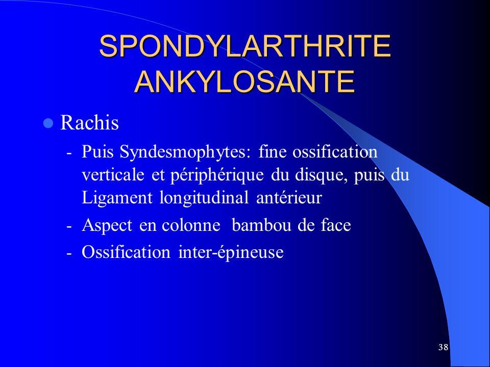 38 SPONDYLARTHRITE ANKYLOSANTE Rachis - Puis Syndesmophytes: fine ossification verticale et périphérique du disque, puis du Ligament longitudinal anté