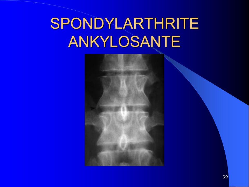 39 SPONDYLARTHRITE ANKYLOSANTE