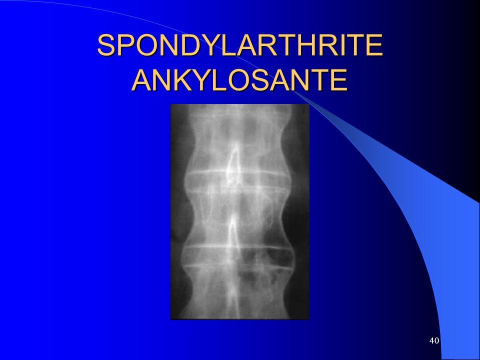 40 SPONDYLARTHRITE ANKYLOSANTE