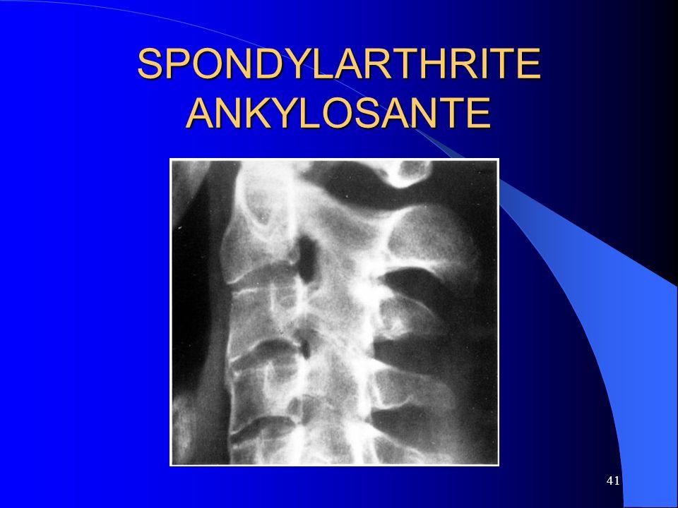 41 SPONDYLARTHRITE ANKYLOSANTE