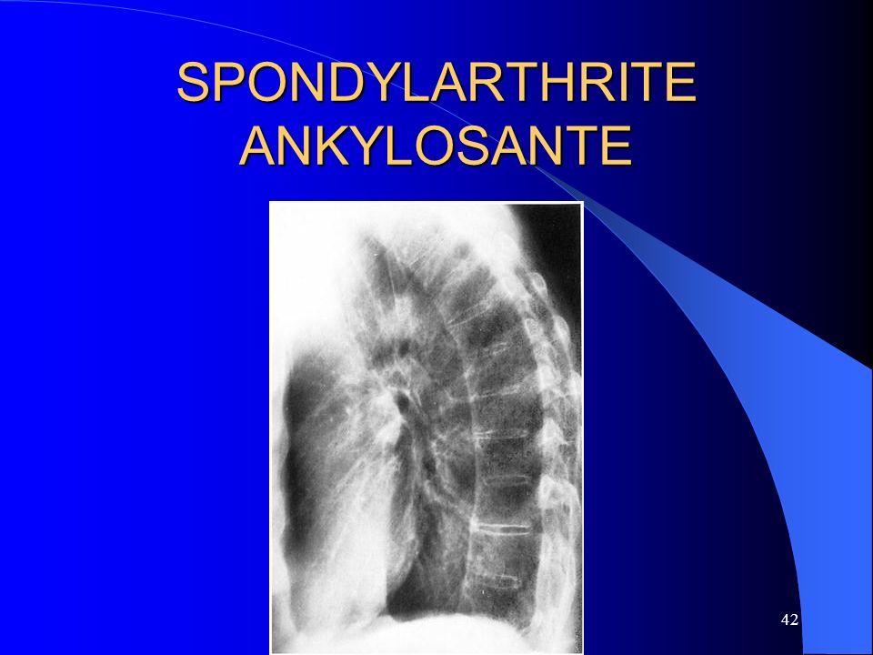 42 SPONDYLARTHRITE ANKYLOSANTE