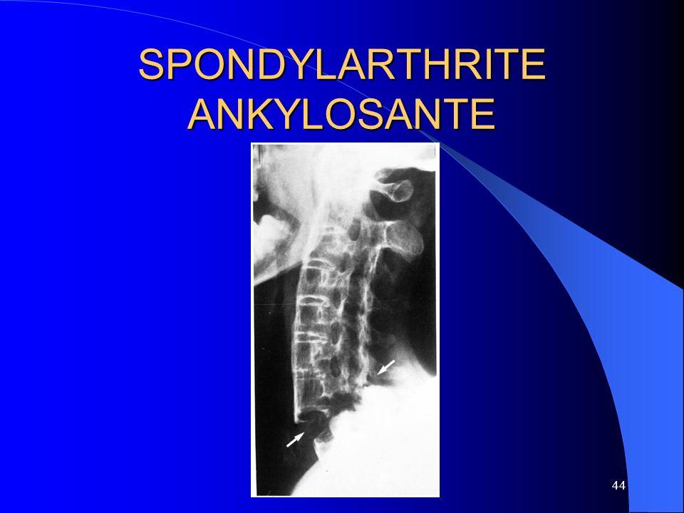 44 SPONDYLARTHRITE ANKYLOSANTE