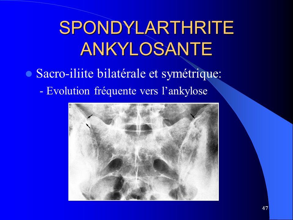 47 SPONDYLARTHRITE ANKYLOSANTE Sacro-iliite bilatérale et symétrique: - Evolution fréquente vers lankylose