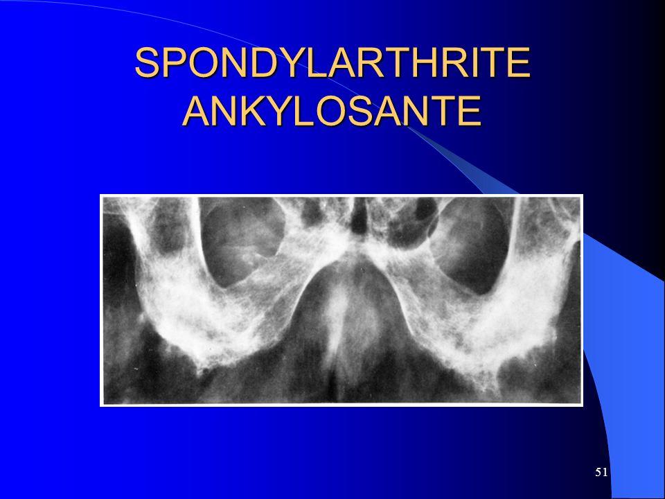 51 SPONDYLARTHRITE ANKYLOSANTE