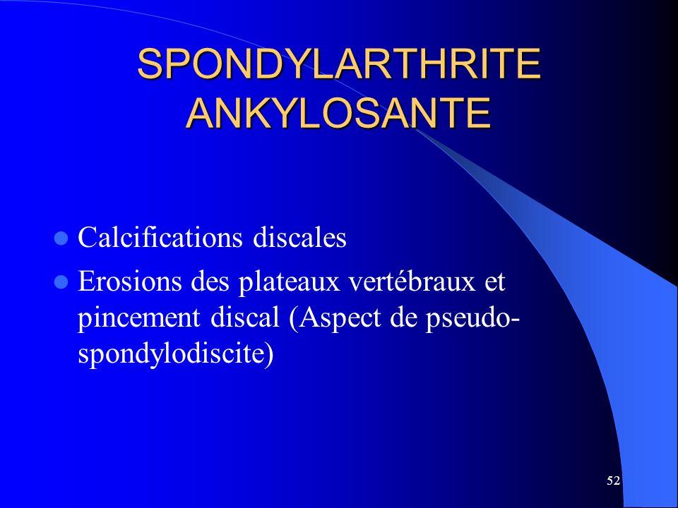 52 SPONDYLARTHRITE ANKYLOSANTE Calcifications discales Erosions des plateaux vertébraux et pincement discal (Aspect de pseudo- spondylodiscite)