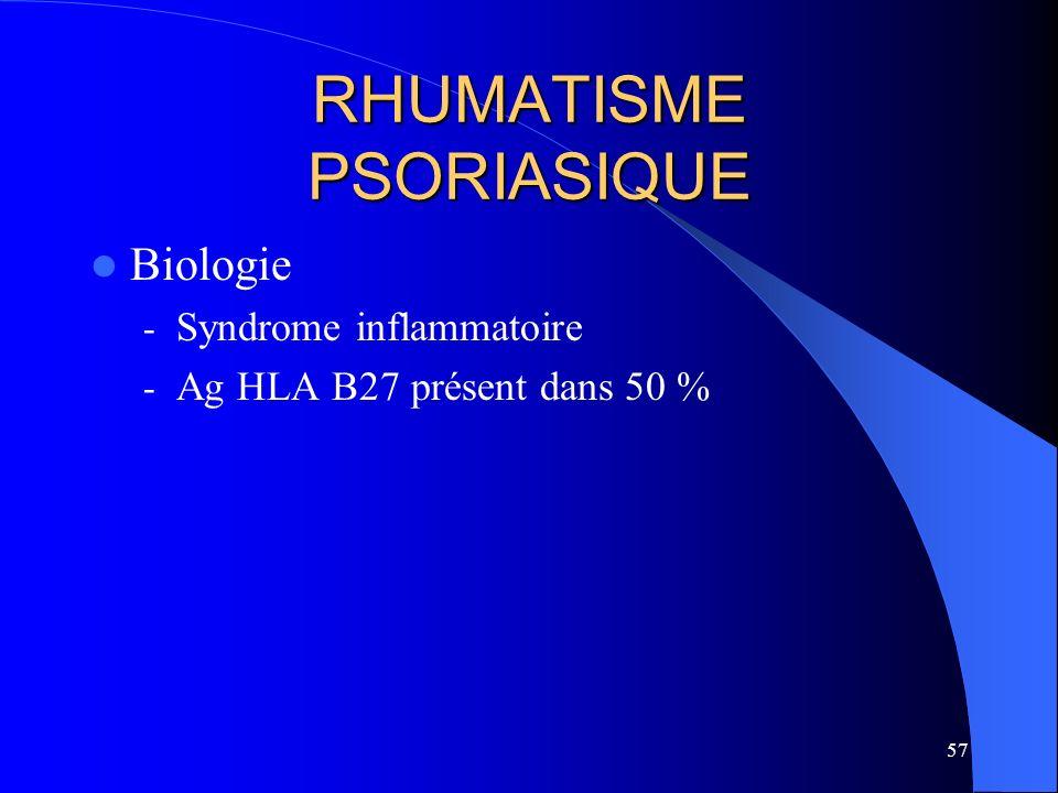 57 RHUMATISME PSORIASIQUE Biologie - Syndrome inflammatoire - Ag HLA B27 présent dans 50 %
