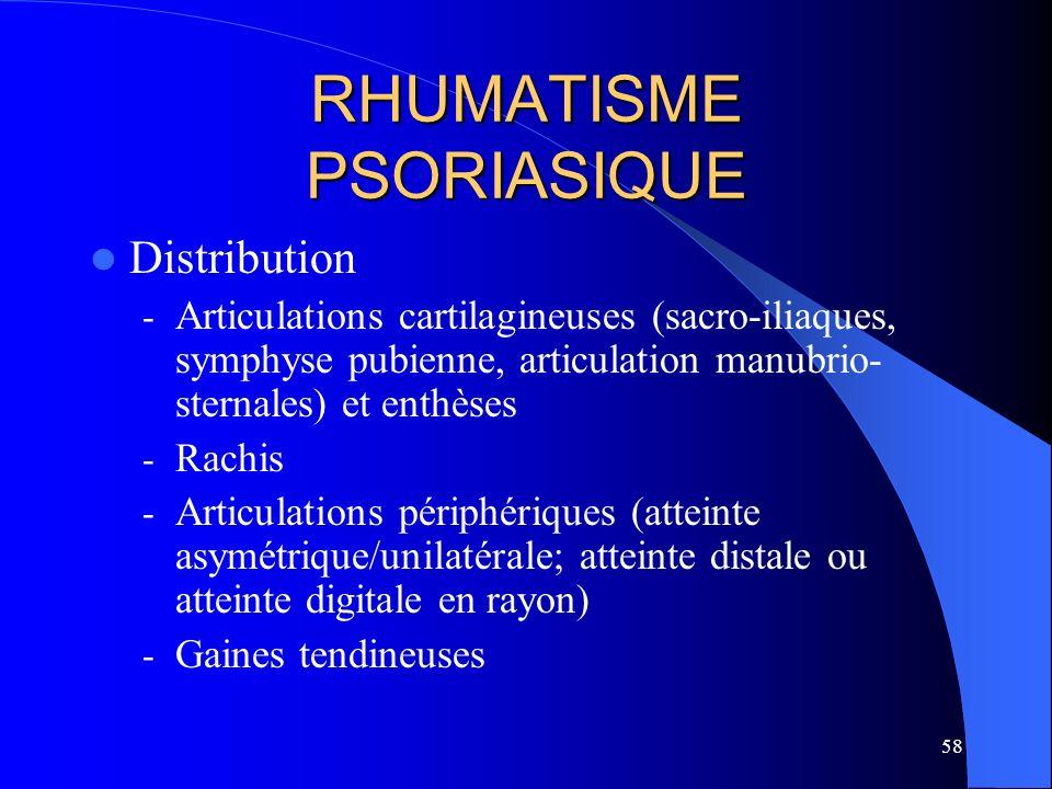 58 RHUMATISME PSORIASIQUE Distribution - Articulations cartilagineuses (sacro-iliaques, symphyse pubienne, articulation manubrio- sternales) et enthès