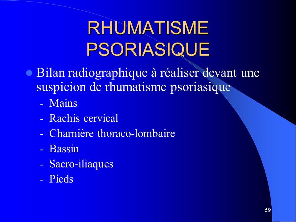 59 RHUMATISME PSORIASIQUE Bilan radiographique à réaliser devant une suspicion de rhumatisme psoriasique - Mains - Rachis cervical - Charnière thoraco